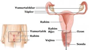 Kadın Hastalıkları ve Ozon