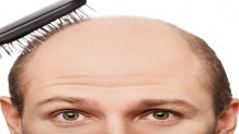Saç Ekimi (FUE)
