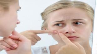 Sivilce & Akne Tedavisi